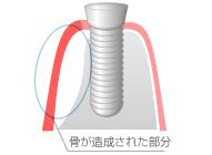 GBR(骨造成) \105,000(1部位)のイメージ