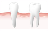 限りなく天然歯に近い人工歯のイメージ