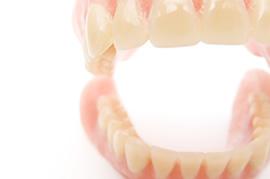 総入れ歯のメリットのイメージ