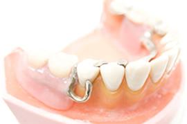 部分入れ歯のメリットのイメージ