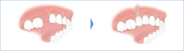 右上5番の1歯が無い場合(スタンダードな例)のイメージ