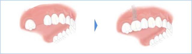 右上6番の1歯が無く、骨の厚みが足りず補助的処置(ソケットリフト)が必要な場合のイメージ