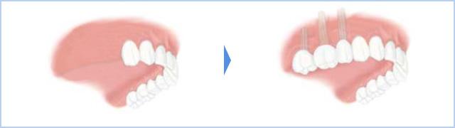 右上5,6,7番の3歯が無く、 骨の厚みが足りず補助的処置(サイナスリフト)が必要な場合(静脈内鎮静法を併用)のイメージ