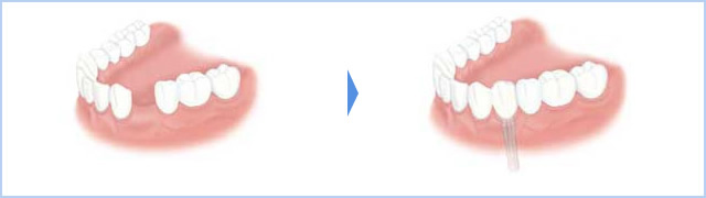 左下4番の1歯が無く、骨の幅が足りず補助的処置(G.B.R.)必要な場合のイメージ