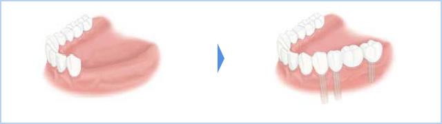 左下4,5,6,7番の4歯が無く、部分的に骨が足りず、 3本のインプラントで4歯の上部構造を装着する場合のイメージ