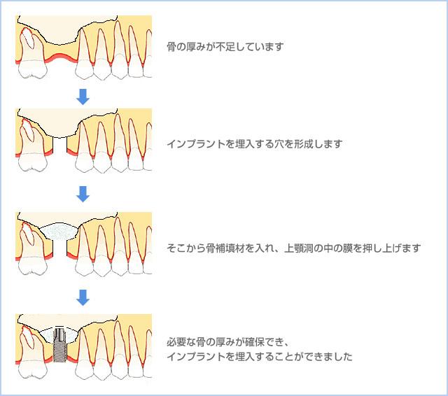 骨の厚みが不足しています→インプラントを埋入する穴を形成します→そこから骨補助填入材を入れ、上顎洞の中の膜を押し上げます→必要な骨の厚みが確保でき、インプラントを埋入することができました