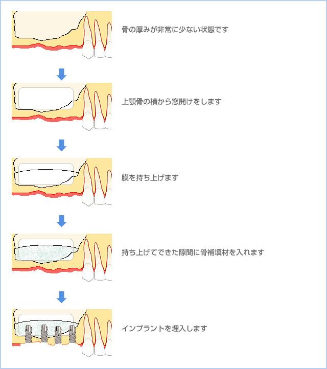 骨の厚みが非常に少ない状態です→上顎骨の横から窓開けをします→膜を持ち上げます→持ち上げてできた隙間に骨補填材を入れます→インプラントを埋入します