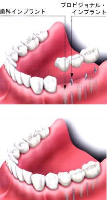 補助インプラントを使用する方法のイメージ