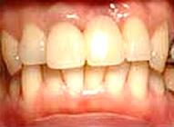 上部構造装着までの仮歯のイメージ