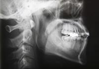 STEP2. インプラント診断 (\31,500円)のイメージ